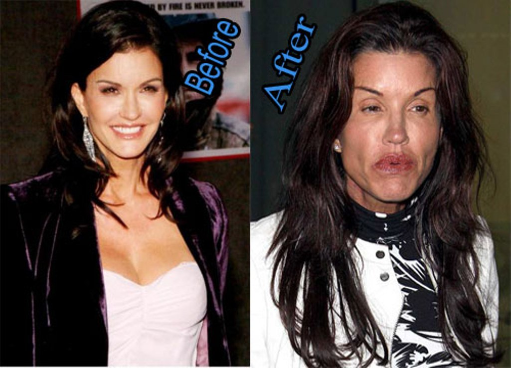 10 Plastic Surgery Gone Wrong Before and After Photos ...