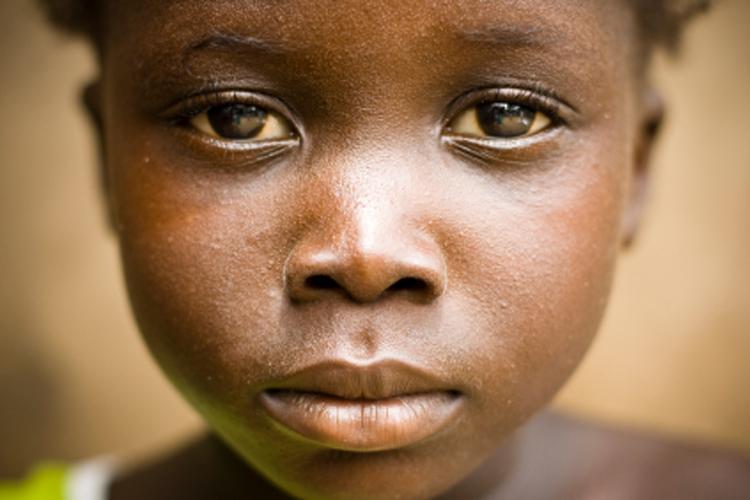 female genital mutilation female (circumcision) in africa, middle