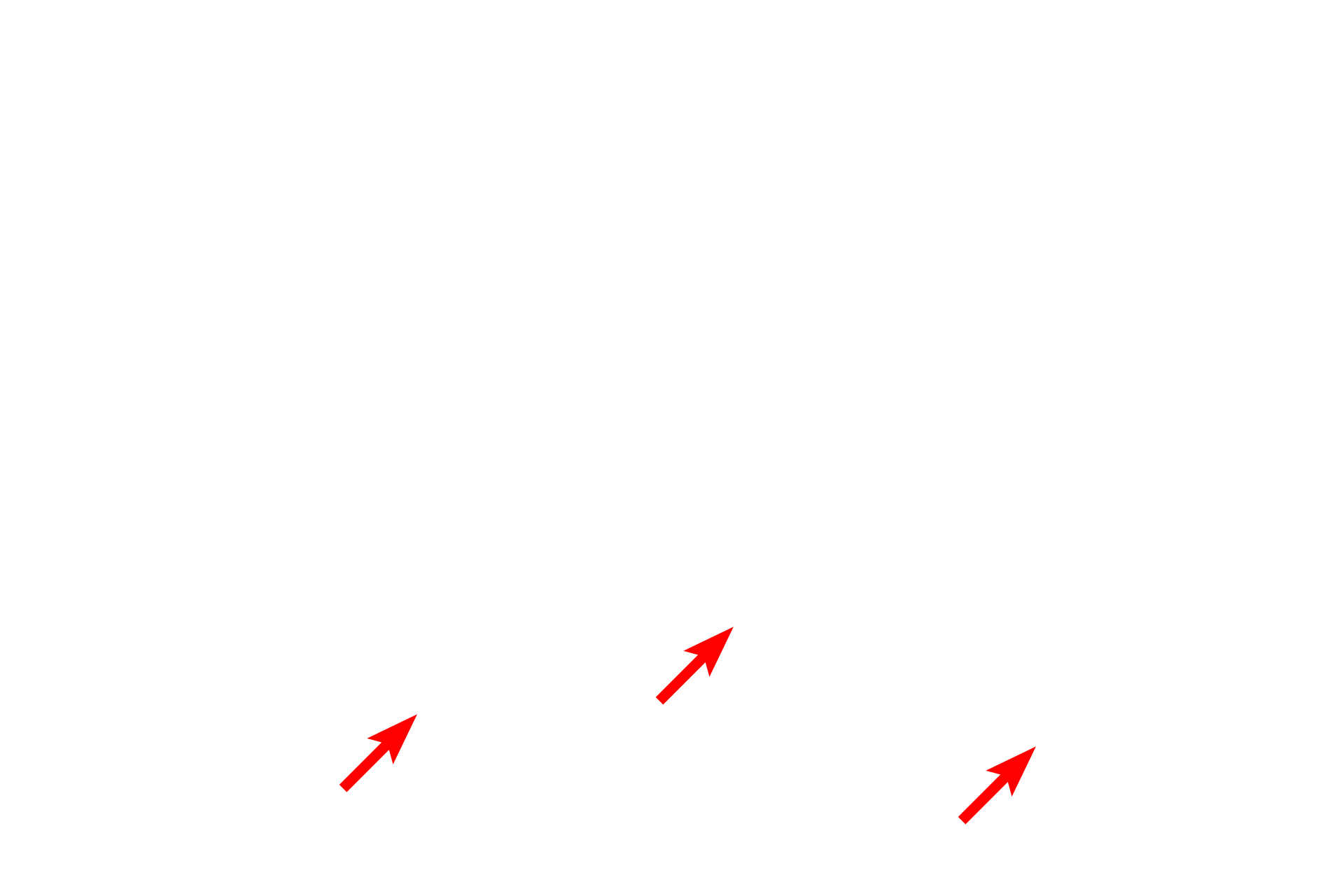 Epimysium <p>Skeletal muscle is invested by three CT layers that bind the muscle together and transmit the force of contraction to the muscle insertion. Endomysium surrounds individual muscle cells; perimysium encloses groups of fibers, defining fascicles. Epimysium surrounds the entire muscle, blends with superficial fascia, and is continuous with a tendon. Masson stain 100x</p>