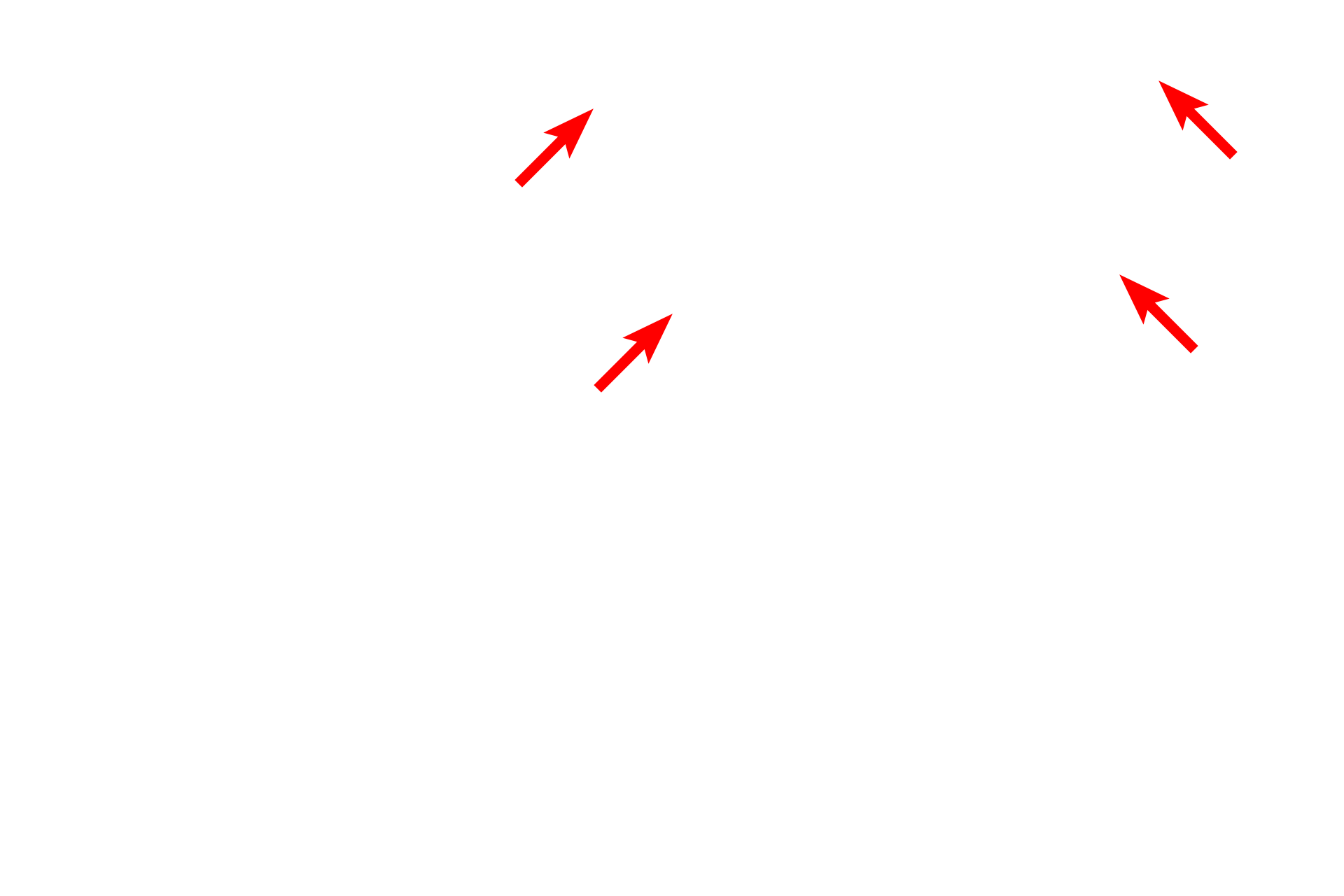 Perimysium <p>Skeletal muscle is invested by three CT layers that bind the muscle together and transmit the force of contraction to the muscle insertion. Endomysium surrounds individual muscle cells; perimysium encloses groups of fibers, defining fascicles. Epimysium surrounds the entire muscle, blends with superficial fascia, and is continuous with a tendon. Masson stain 100x</p>