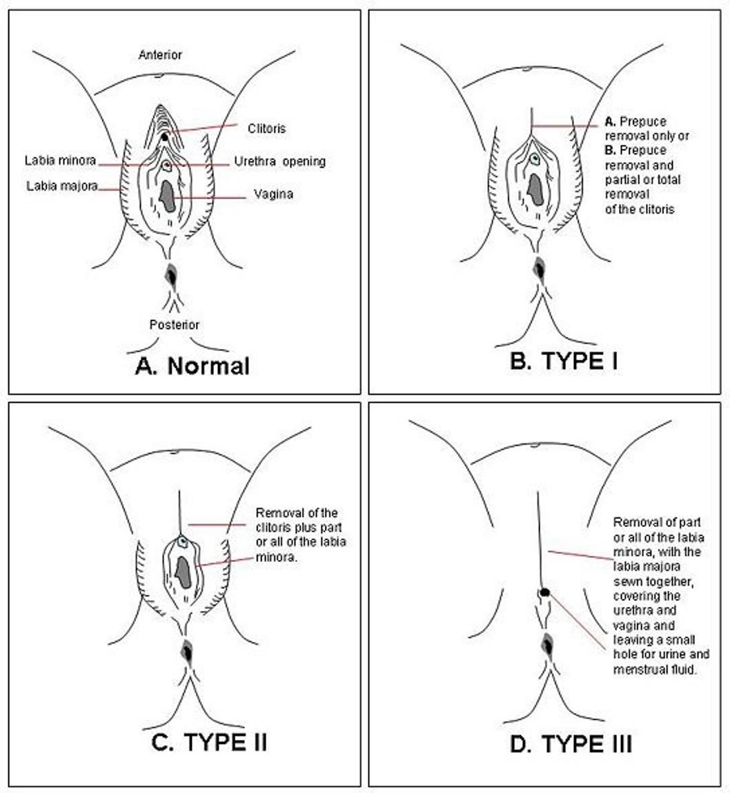 Tolle Anatomie Des Weiblichen Genital Bilder - Anatomie Von ...