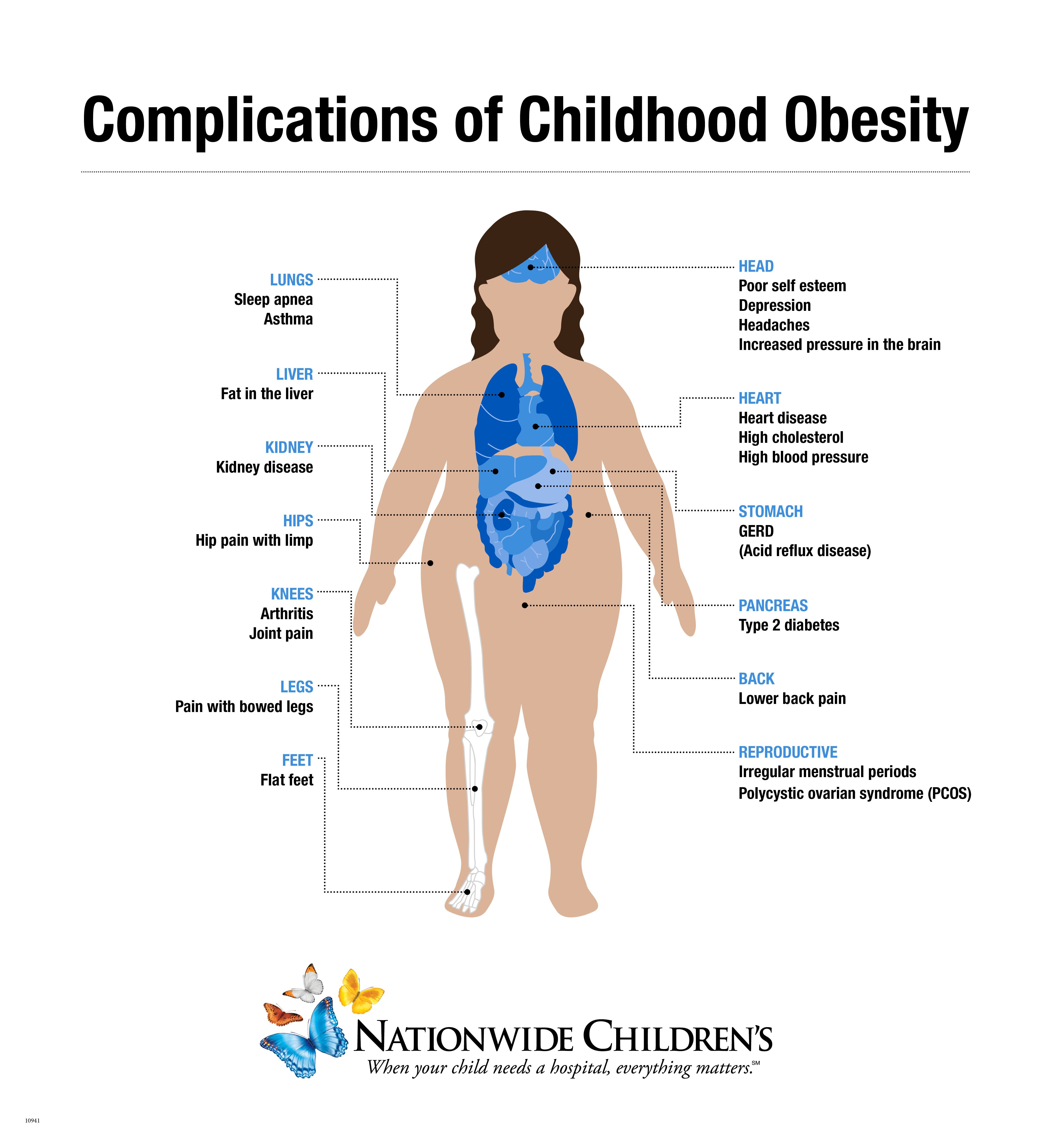 obesity in children Background on how we can (ways to enhance children's activity & nutrition) is addressing childhood obesity through community action.